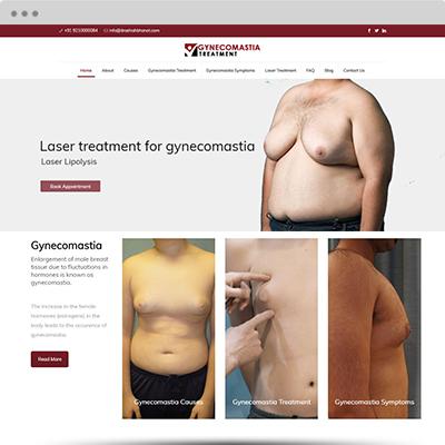 gynecomastiatreatment